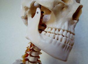 垂直的骨量不足にも適応可能